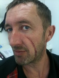 Dagmer Cleftjaw casting Ralph Ineson